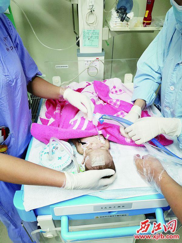历经4小时,患儿终于顺利插管。